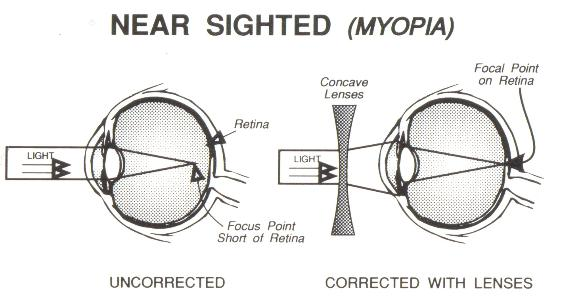 vision depot optical - mississauga optician and glasses, Cephalic Vein